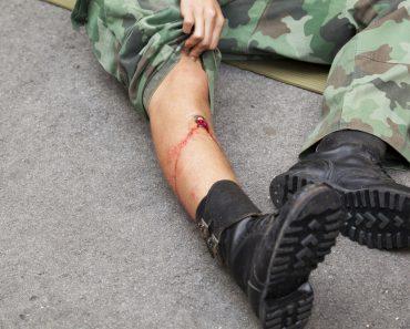 Handling gunshot wounds in an active shooter scenario